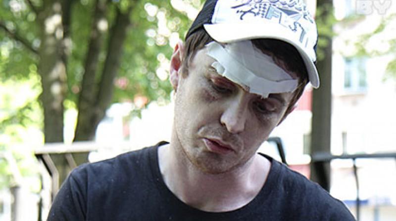 Jans Gavrilovs pēc ripas trāpījuma Foto: Viktors Gilickis, kp.ru